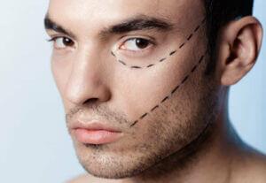 Ästhetisch-Plastische Eingriffe Mann
